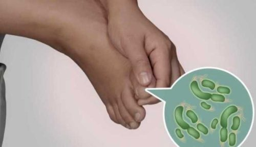 бактерии на ногах