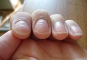 кривая ногтевая пластина