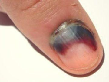 кровь под ногтем