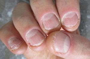 обгрызенные ногти