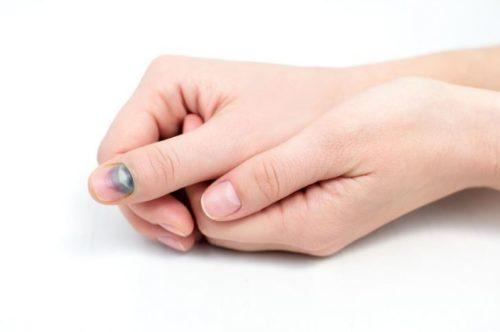 почернение ногтя