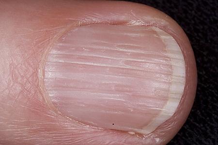 потрескались ногти