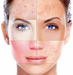 проблемы с кожей на лице