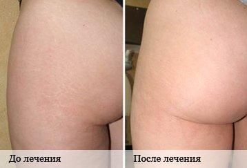 растяжки до и после лечения