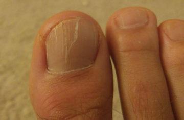 трещина на ногте