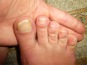 твердые ногти на ногах