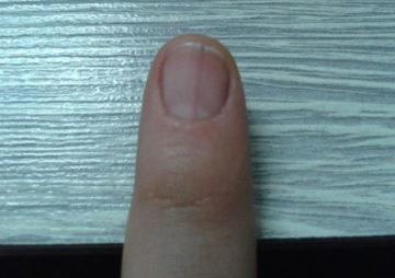 вертикальная трещина на ногте