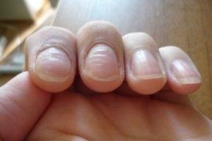волнистые ногти на ногах